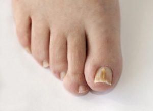 fungal toenail infections